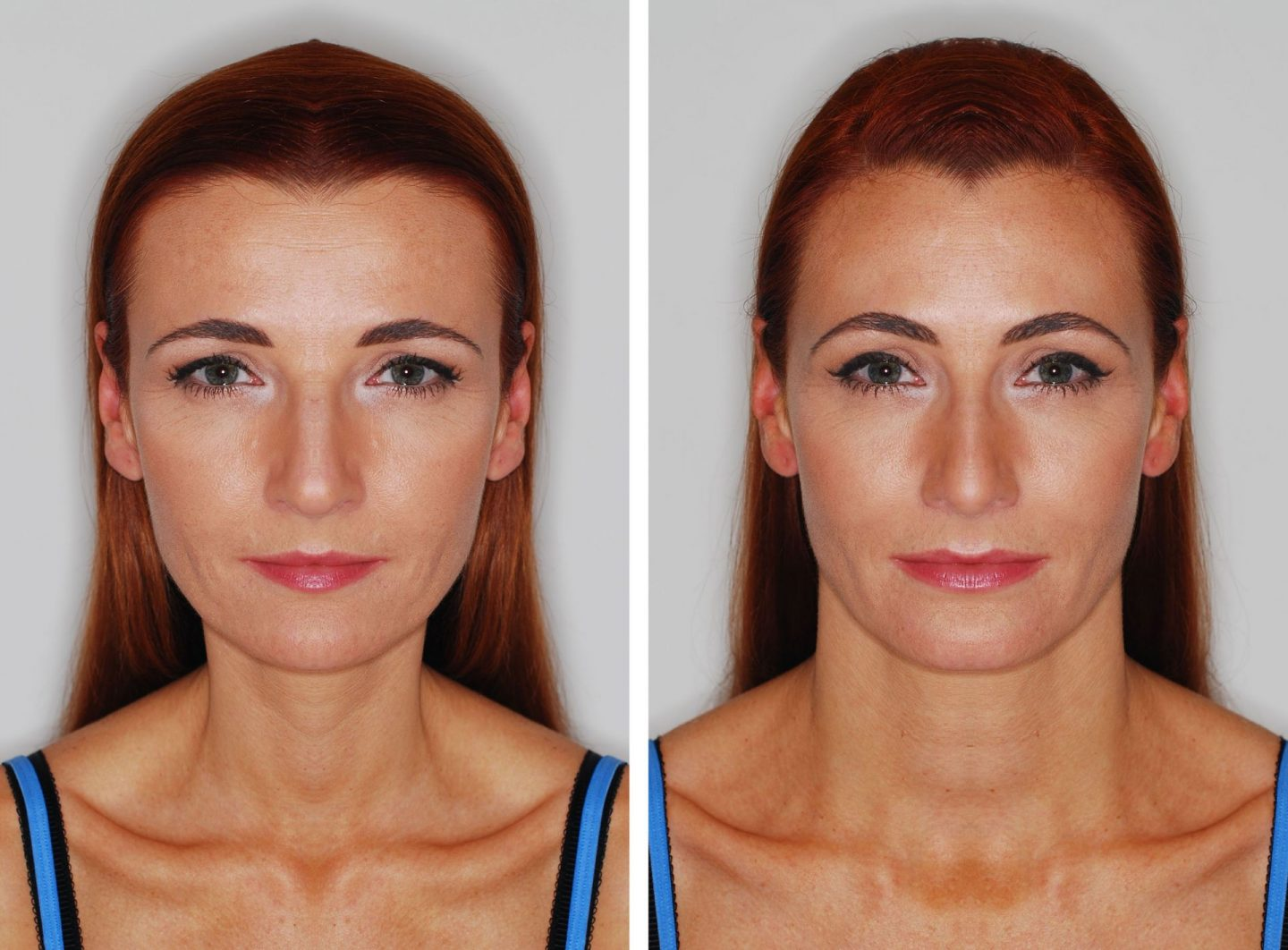 My 40 Year Old Face | Is There Beauty In Symmetry? | Not Dressed As Lamb